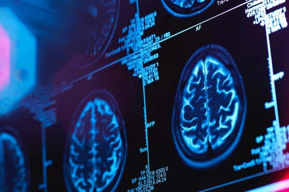 canada medecins enquetent mysterieuse maladie neurologique couv