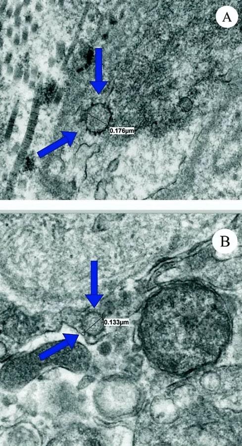 dysfonctionnement endothelial ultrastructures tissu penien
