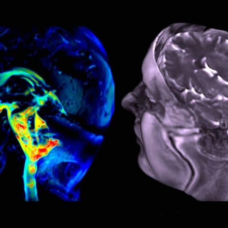 nouvelle technique imagerie capture mouvement cerebral avec precision etonnante