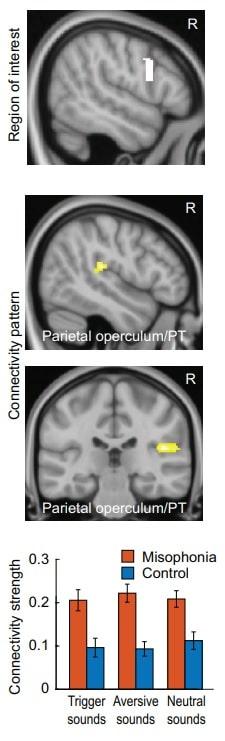 scan cerebral misophonie