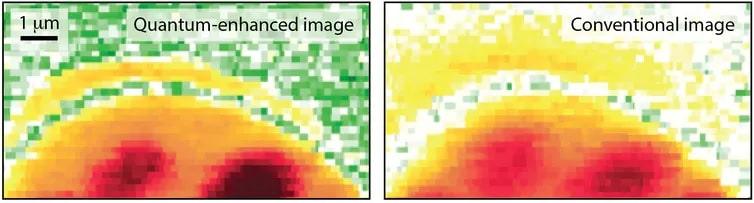comparaison microscopie laser quantique