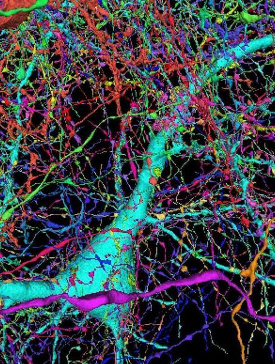 google cartographie echantillon cerveau humain comme jamais auparavant