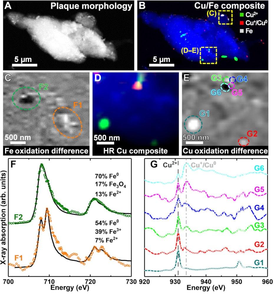 identification métaux plaque amyloïde