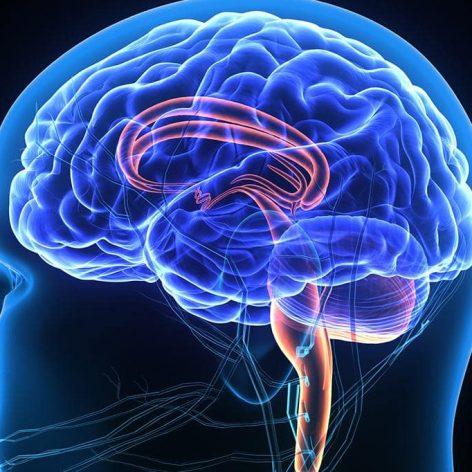 implant cérébral traitement douleur