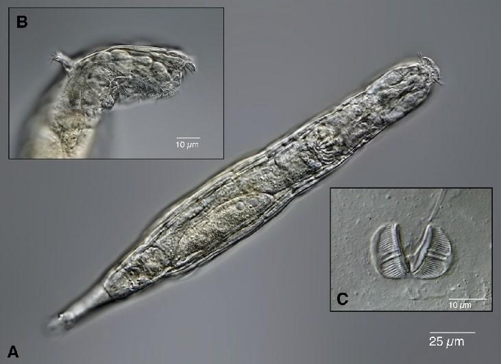 observation specimen rotifere bdelloid pergelisol