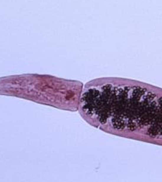 parasite ténia épidémie