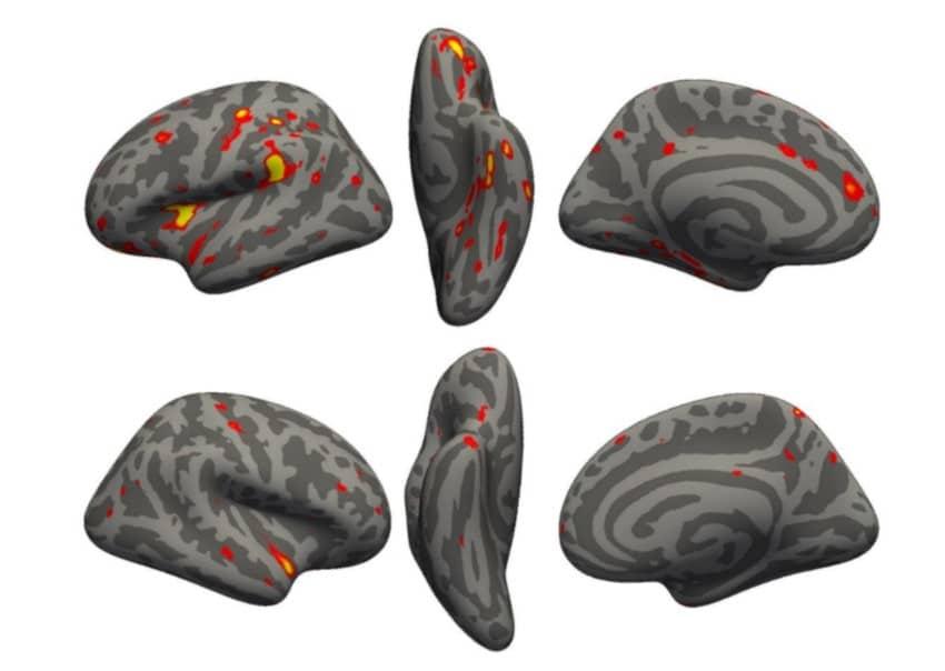 zones cerveau pertes matière grise