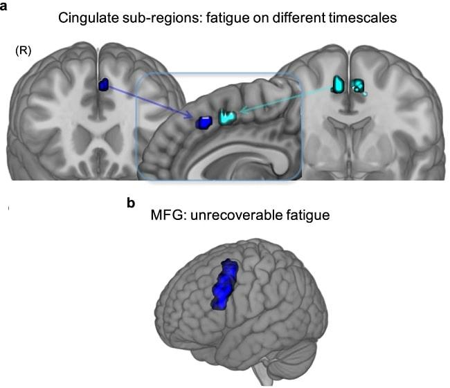 activite cerebrale fatigue