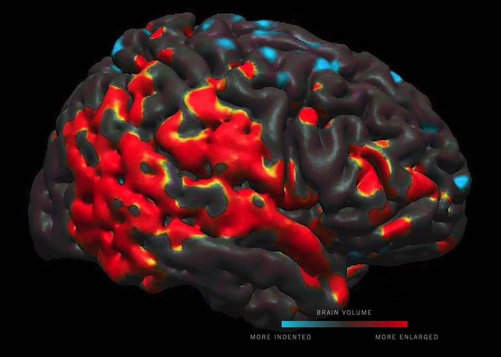 impact pesticides communs volume cerveau enfants