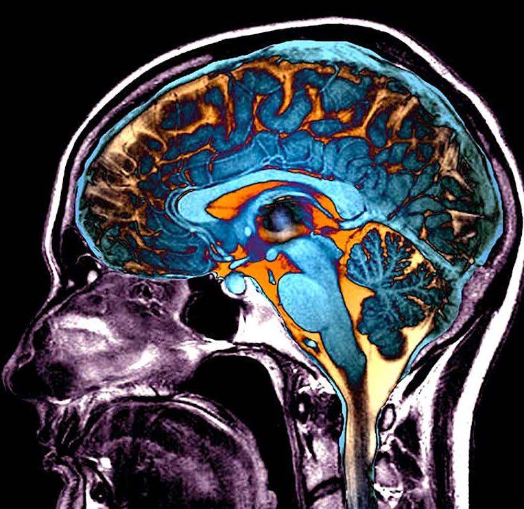 modifications cerebrales provoquees par covid impact sur conscience cognition