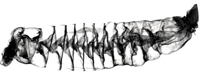 scan intestin requin aiguillat commun