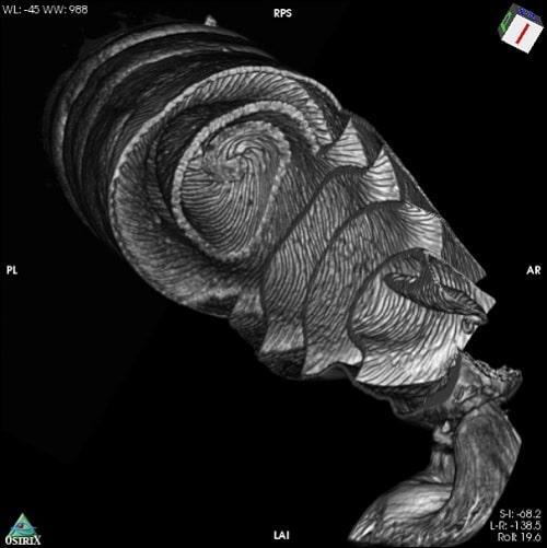 scan visualisation intestin requin