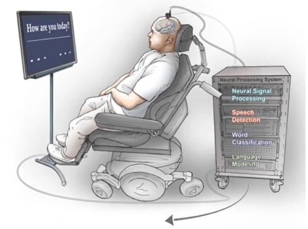 schema fonctionnement dispositif activite cerebrale