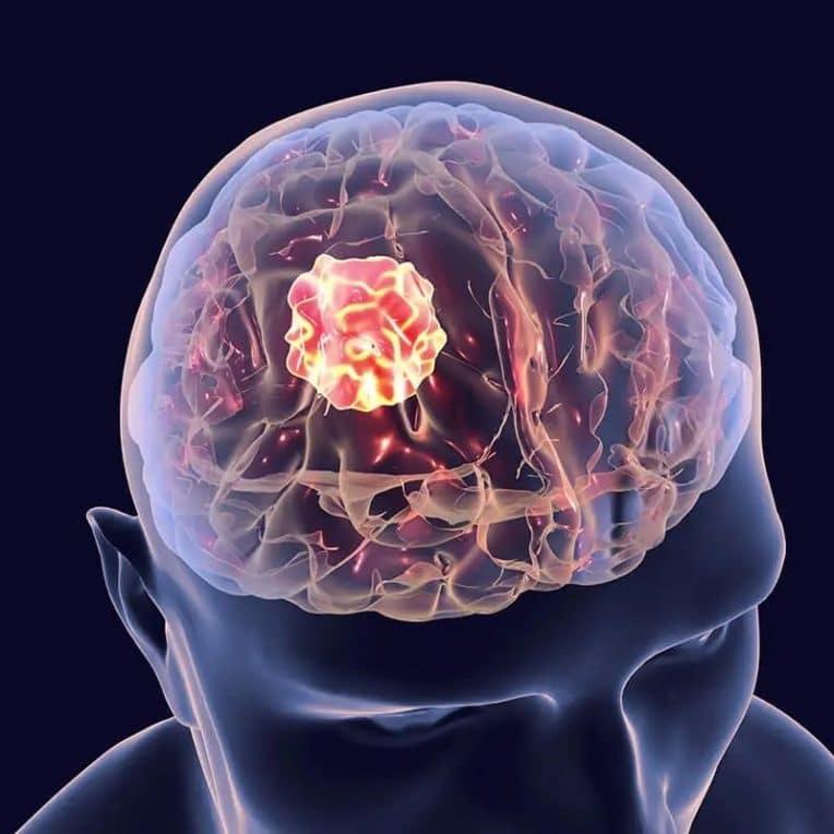 structures cancers cerebraux peuvent aider combattre tumeurs