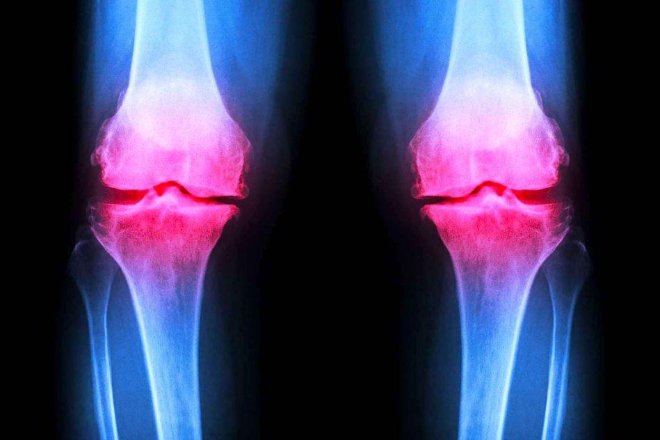 hydrogel injectable regenerer cartilage endommage articulations
