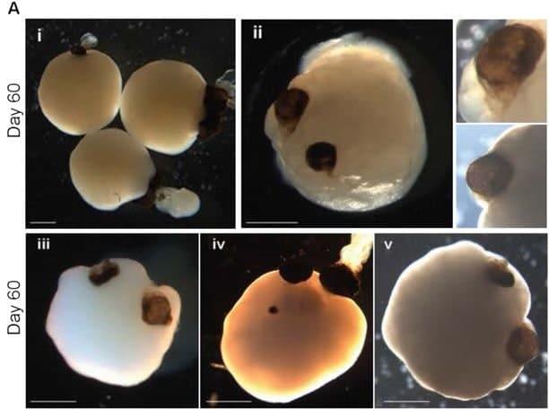 images organoides vesicules visuelles