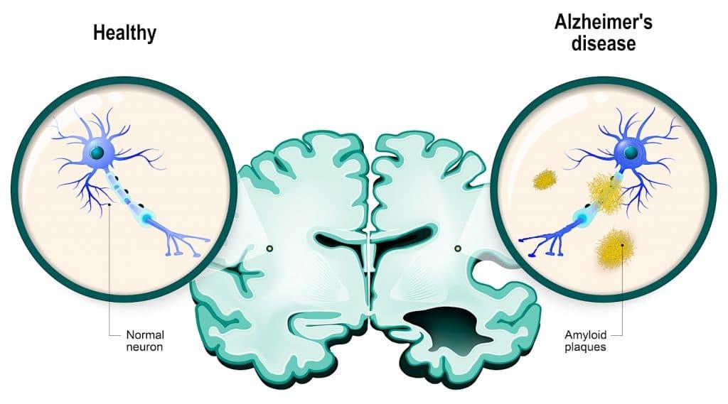 comparaison neurone sain alzheimer amyloides