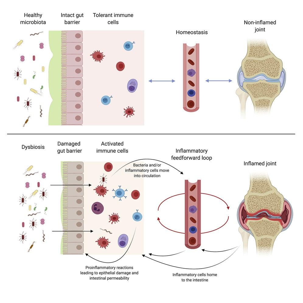 desequilibre microbiote intestinal inflammation polyarthrite rhumatoide schema