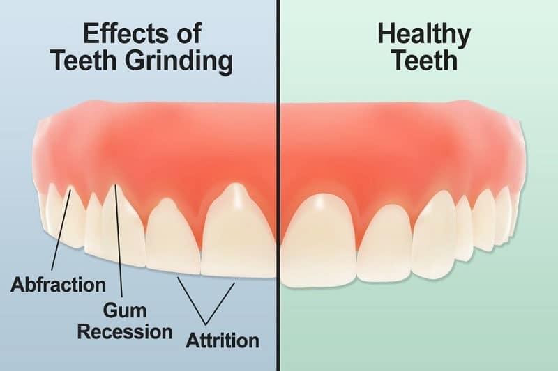 effets bruxisme dents