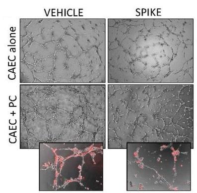 proteine pointe coronaire pericytes