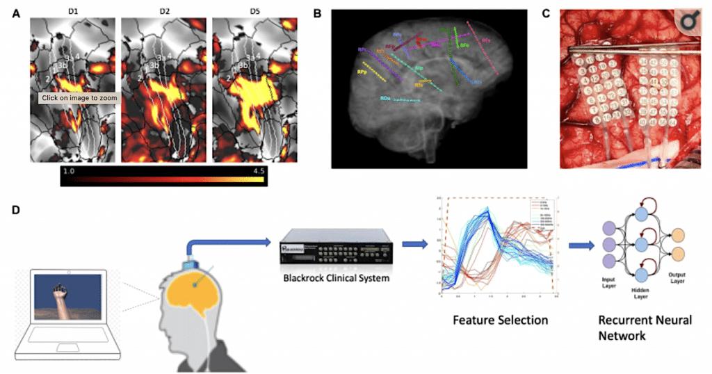 Bagan uji implantasi elektroda anggota kontrol otak