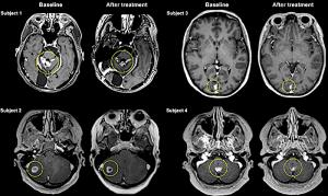 avant apres traitement ultrason barriere cerveau cancer