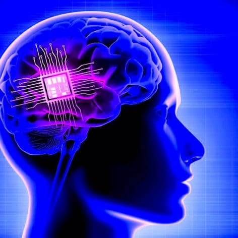 implant cerebral personnalise utilise avec succes traitement depression