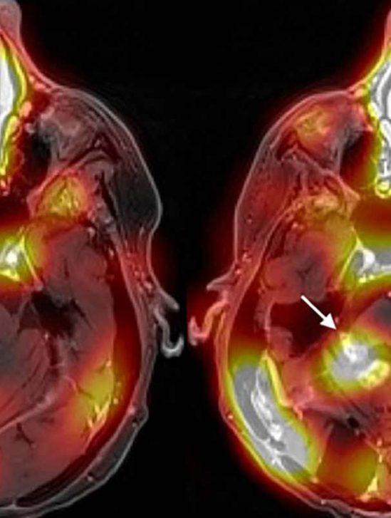 premiere methode-traitement cancer cerveau franchissant barriere hemato-encephalique