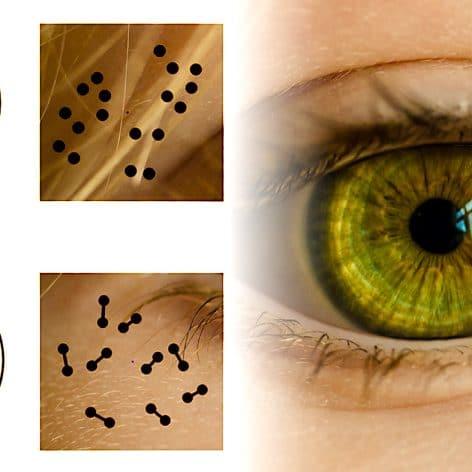 pupille reagit informations numeriques etude