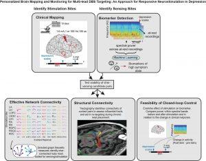 traitement depression ciblage biomarqueurs implant neuronal